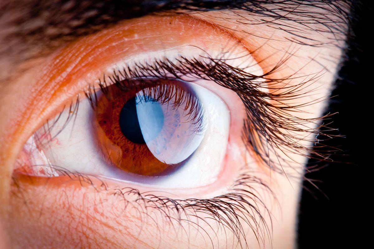 """Olho"" em f/22 1/180 ISO800."